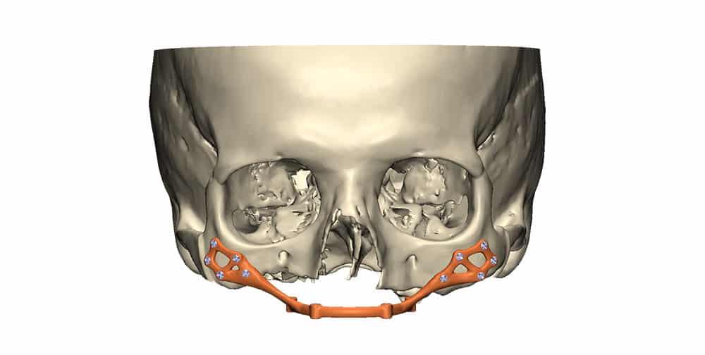 3D beeld van reconstructie bovenkaak met behulp van een patiënt specifiek bovenkaak implantaat