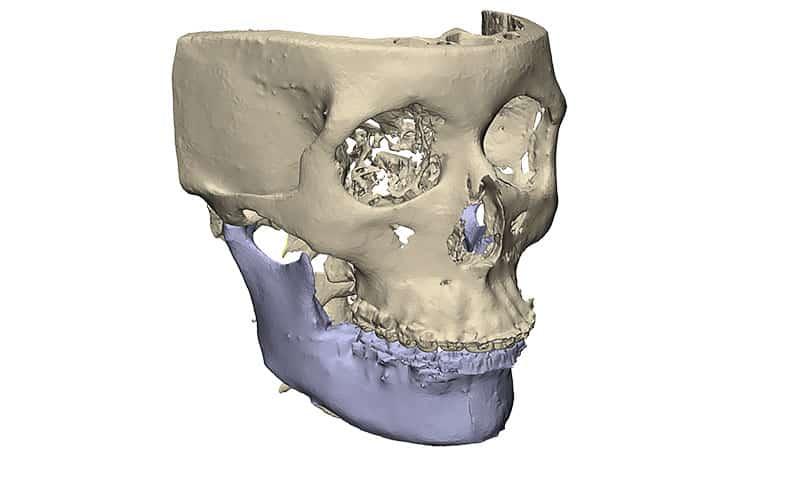3D beeld van bovenkaak voor reconstructie met 3D technologie