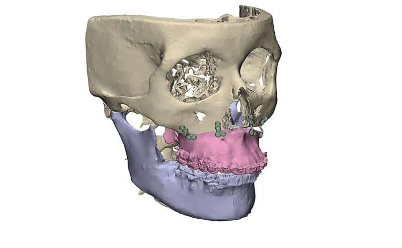 Bovenkaak reconstructie met patiënt specifieke platen