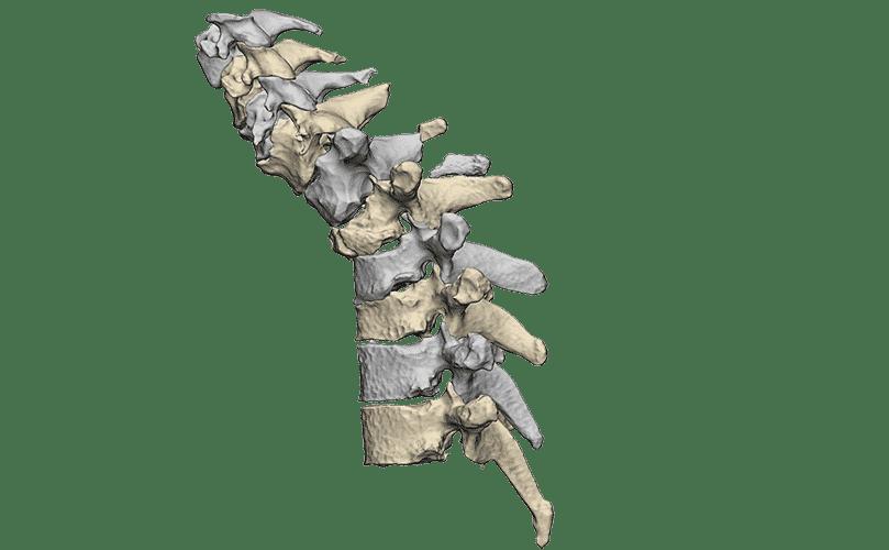 3D beeld van ingezakte wervel in de wervelkolom
